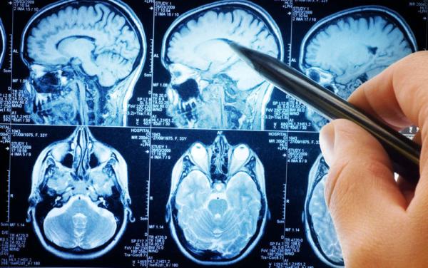 A Careggi sotto attacco epilessie e apnee notturne